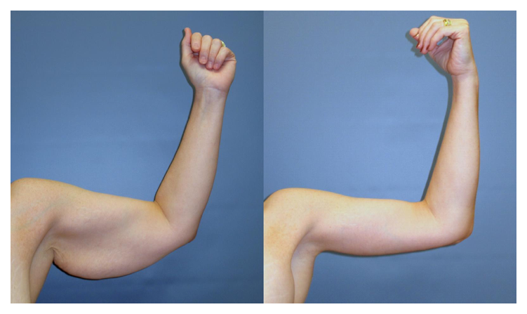 77b72f62cf Complete tightening of the loose arm skin with full brachioplasty