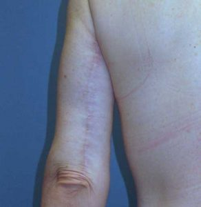 Posterior arm scar 6 months after surgery at wake plastic surgery cary nc
