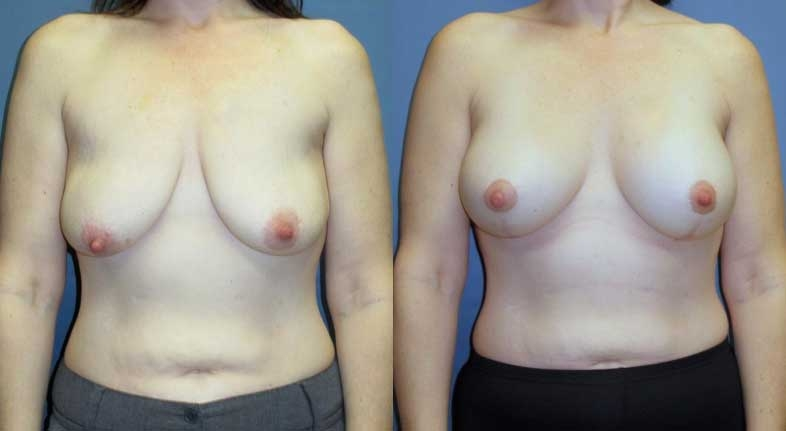 Before and after of breast lift