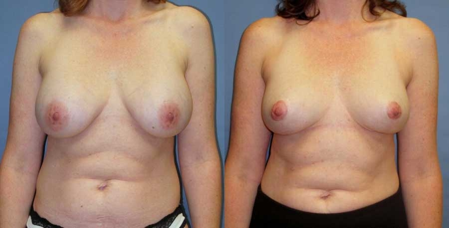 Before and after of breast revision at wake plastic surgery cary nc