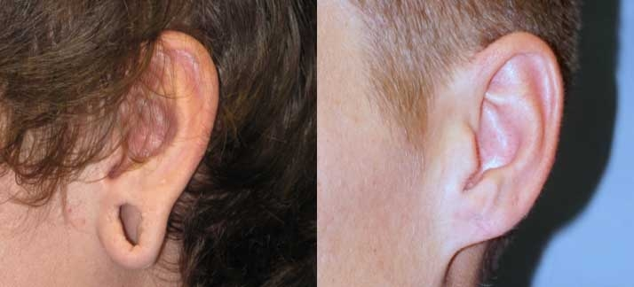 Before and after photos of Ear Surgery at wake plastic surgery in cary nc