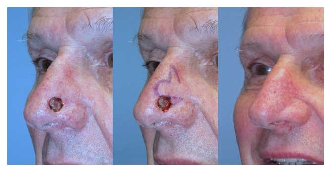 Facial Reconstruction Raleigh Nc Dr William Stoeckel