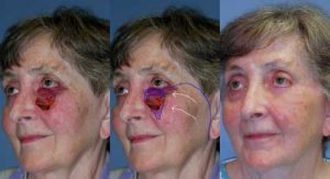 Before and After Facial Reconstruction at wake plastic surgery cary nc