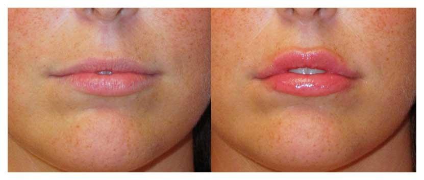 Lip Augmentation - Raleigh, NC | Dr  William Stoeckel